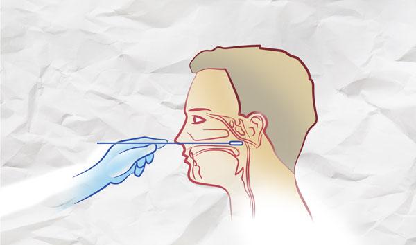 Wasserlassen nach abstrich schmerzen Schmerzen NACH